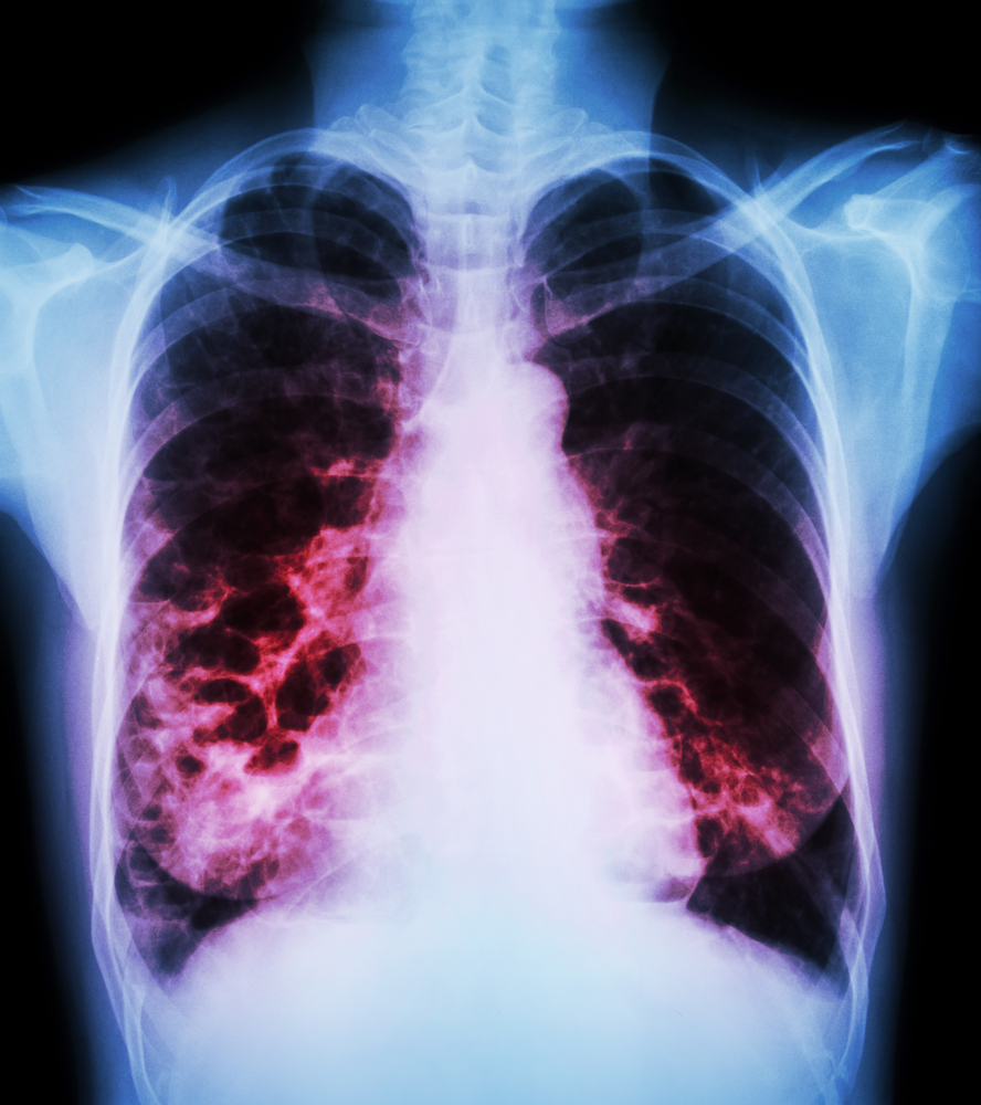 Study Identifies Clinical Characteristics of Chronic Obstructive Pulmonary Disease with Bronchiectasis