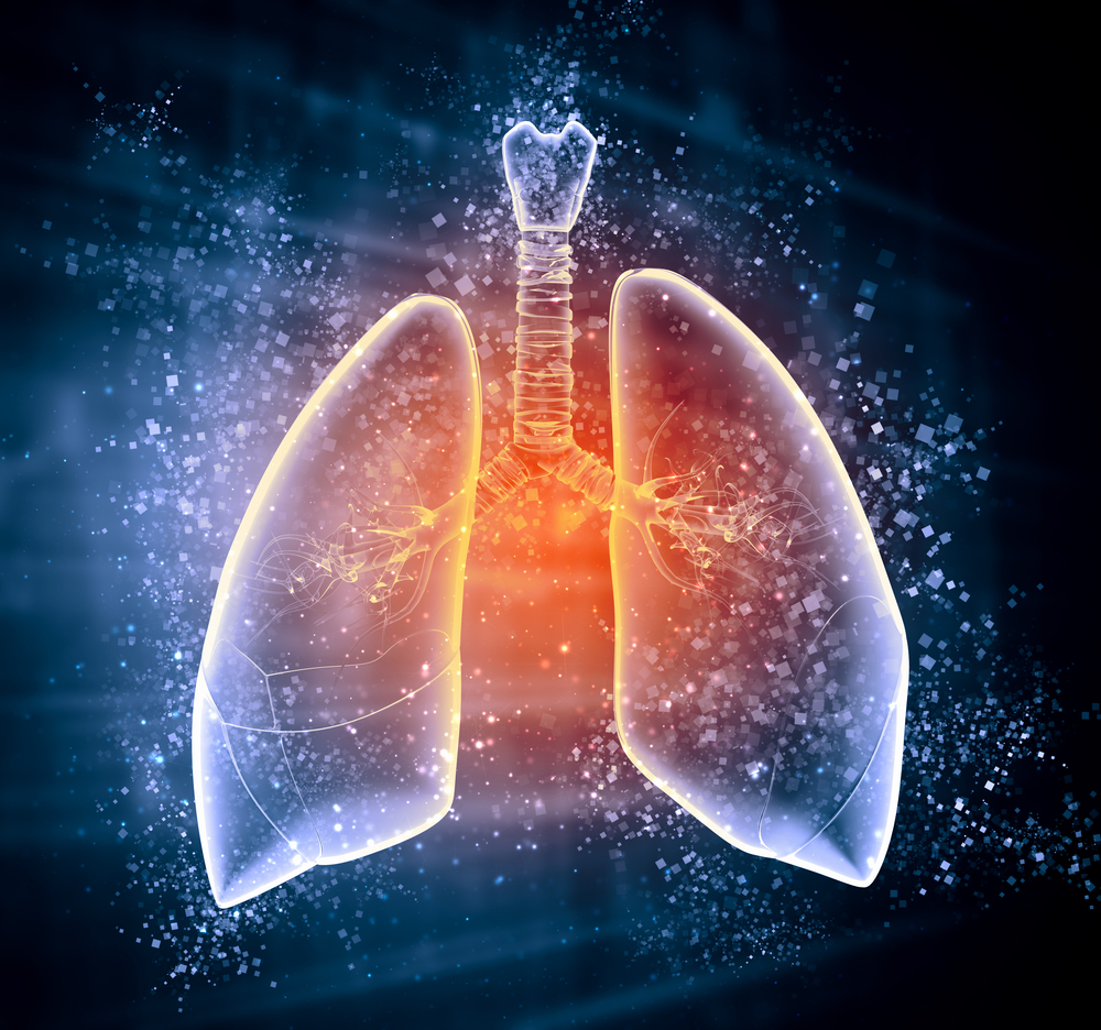 Study Findings Highlight Causes Behind Underdiagnosis of Bronchiectasis
