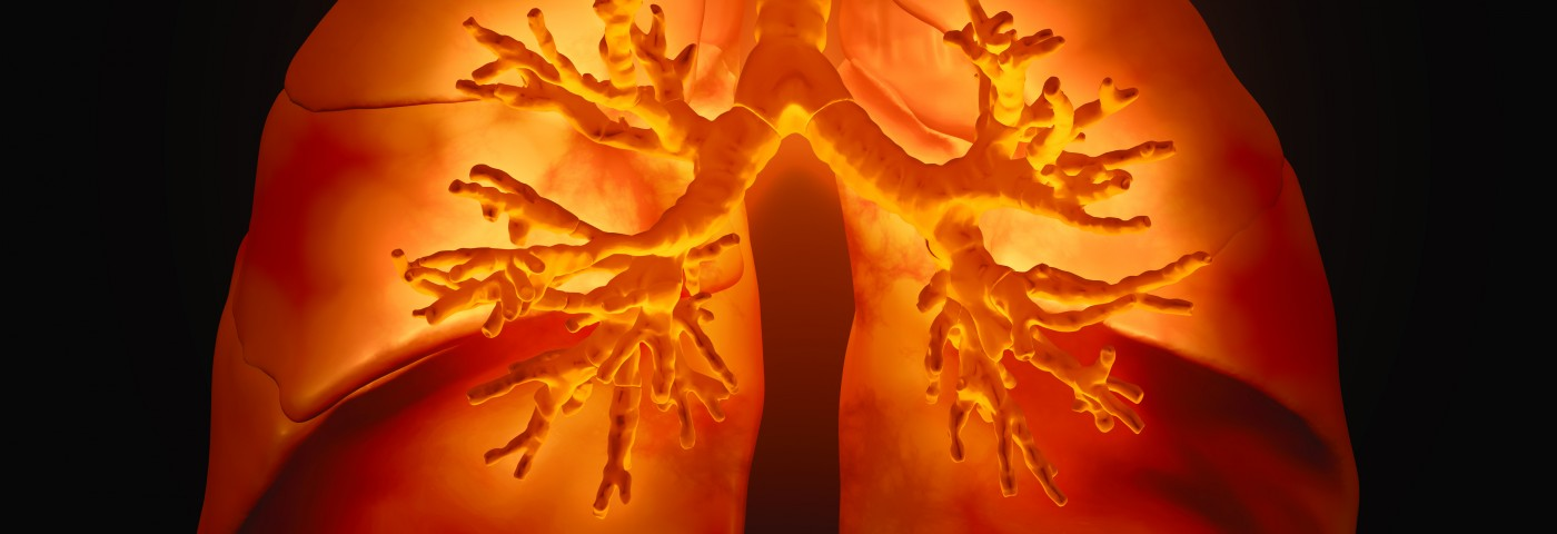 Bronchiectasis Appears to Be Common in Airway-Centered Fibroelastosis, a Possible New Lung Disorder in Women