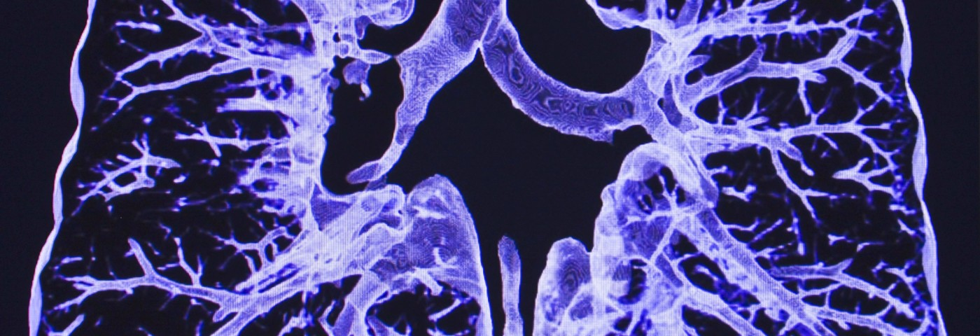 Link Found Between Non-Cystic Fibrosis Bronchiectasis and NTM Lung Infection