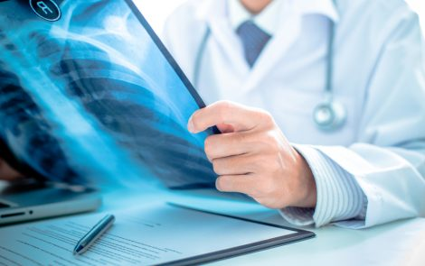 Untreated Patients with Nodular Bronchiectatic MAC Lung Disease Fare Poorly Over Time, Study Finds