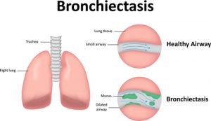 what is Bronchiectasis?