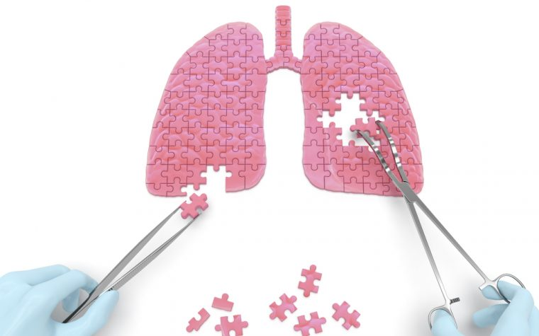 Surgery May Be Wise Choice for Select Patients With Diffuse Bronchiectasis, Study Finds