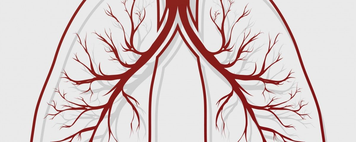 Patients with Bronchiectasis and COPD Have Frequent, Longer Exacerbations
