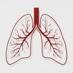 Bronchiectasis heart risk