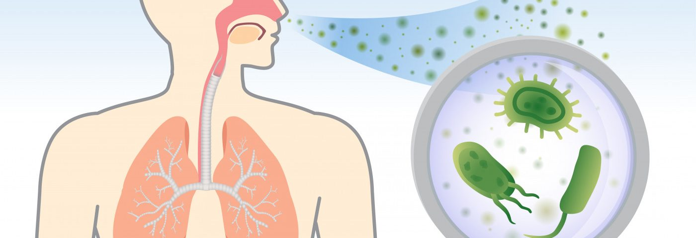 S. aureus Infection Not Strongly Linked to Decline in Bronchiectasis Patients, Study Reports